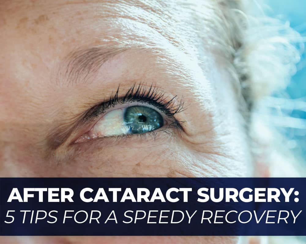 After Cataract Surgery
